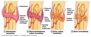 Cissus Quadrangularis Bone Healing