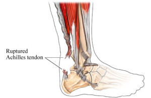Cissus - Ruptured Achilles Tendon