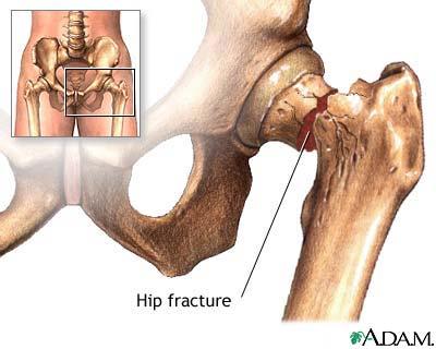 Cissus Heals Bone Fractures