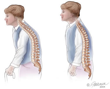 Cissus Quadrangularis Enhances Bone Marrow and Prevents Osteoporosis